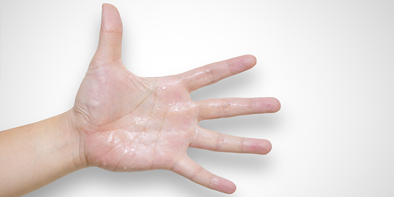 hiperhidrosis en las manos