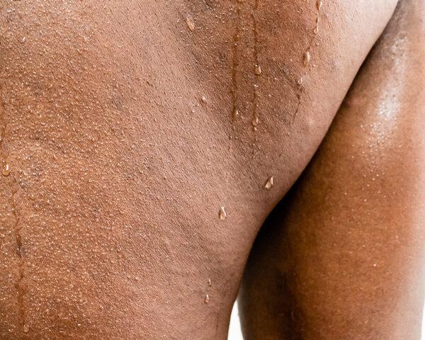 hiperhidrosis espalda