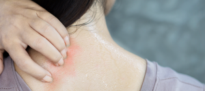 alergia al sudor