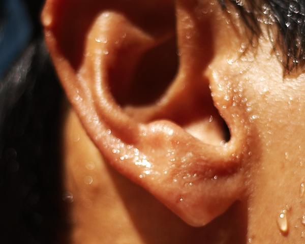 sudor en los oídos